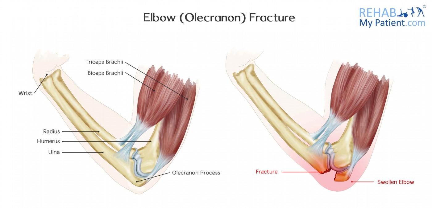 hight resolution of elbow olecranon fracture