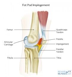 fat pad impingement anatomy [ 1371 x 1400 Pixel ]