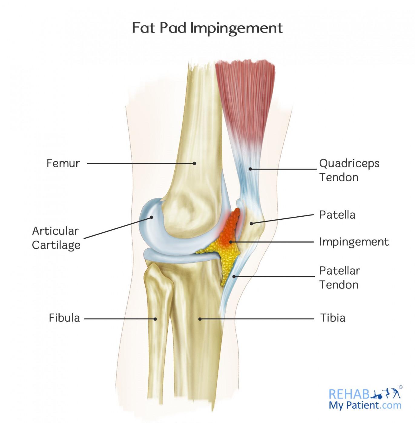 hight resolution of fat pad impingement anatomy
