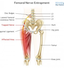 how to treat femoral nerve entrapment  [ 1400 x 1245 Pixel ]
