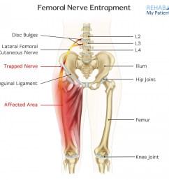 how to treat femoral nerve entrapment  [ 1400 x 1245 Pixel ]
