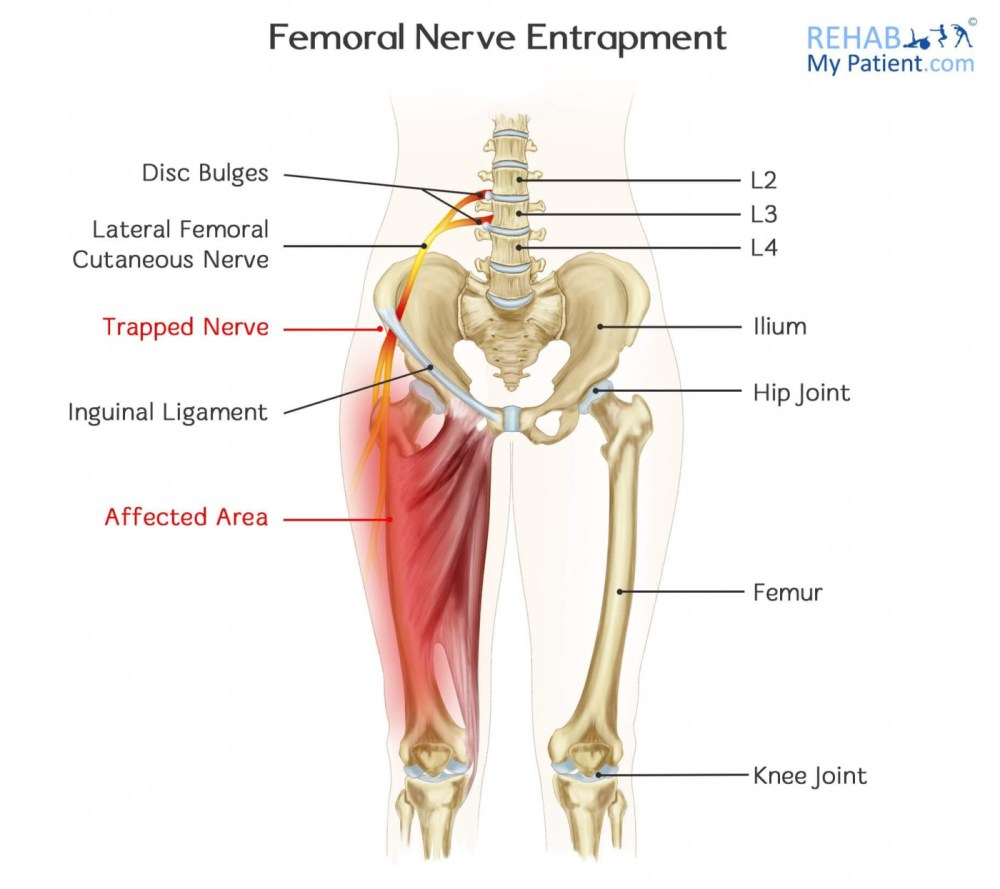 medium resolution of how to treat femoral nerve entrapment