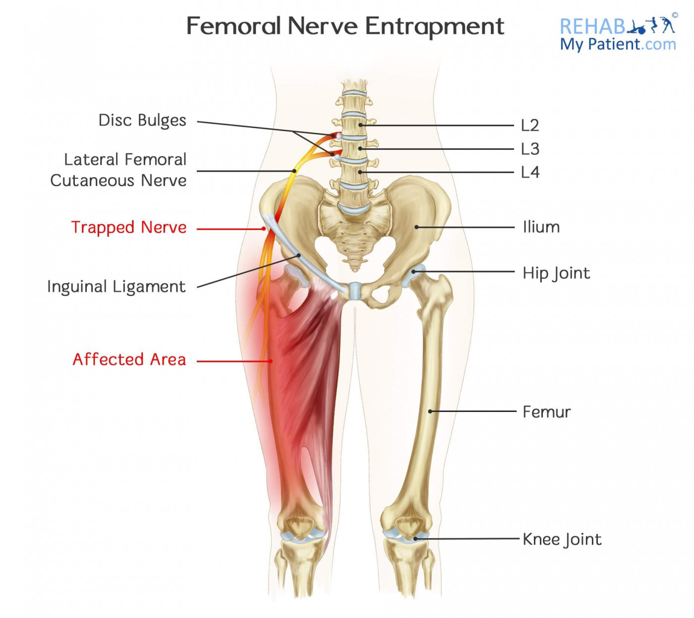 hight resolution of how to treat femoral nerve entrapment