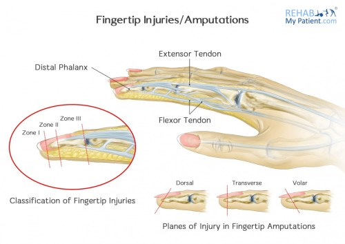 small resolution of fingertip injuries amputations