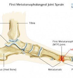 how to treat a first metatarsophalangeal mtp joint sprain  [ 1400 x 996 Pixel ]