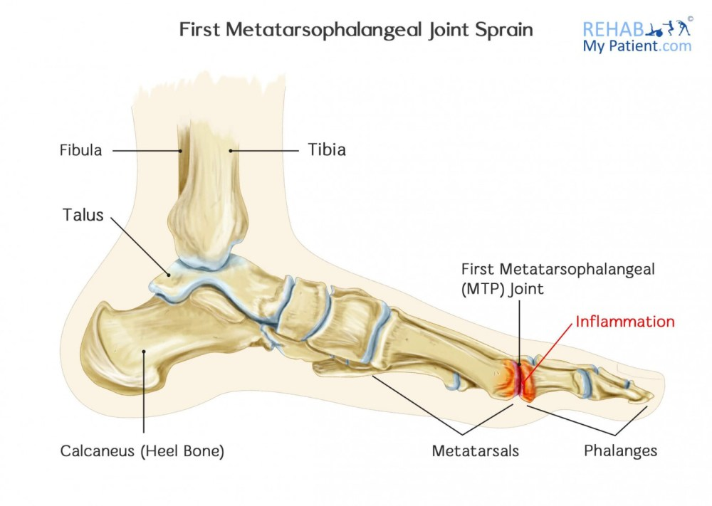 medium resolution of how to treat a first metatarsophalangeal mtp joint sprain