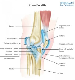 pes anserine bursitis most common in overweight women aged 45 probably because of the wider pelvis and altered gait occurs two inches below the inside  [ 1371 x 1400 Pixel ]