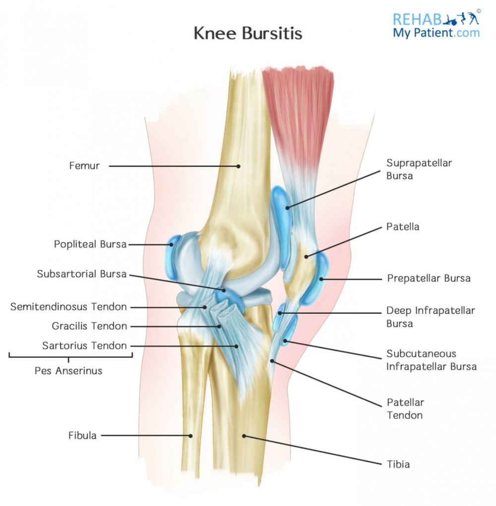 medium resolution of pes anserine bursitis most common in overweight women aged 45 probably because of the wider pelvis and altered gait occurs two inches below the inside