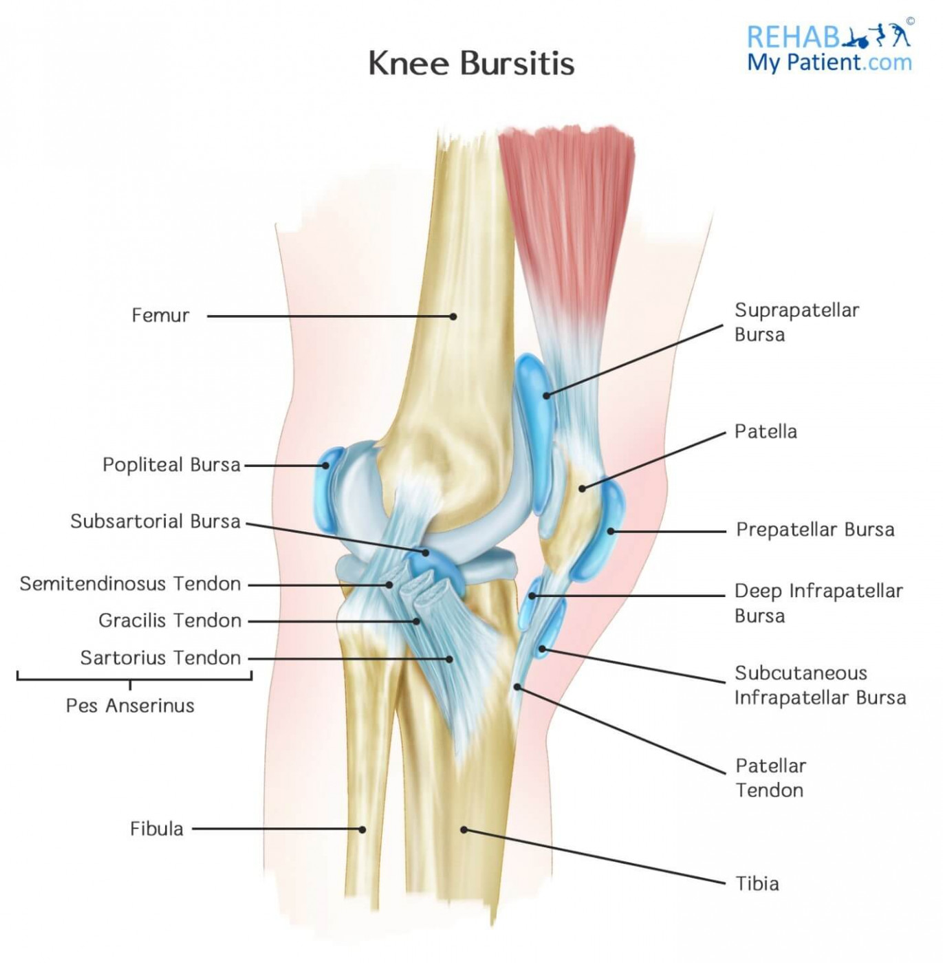 hight resolution of pes anserine bursitis most common in overweight women aged 45 probably because of the wider pelvis and altered gait occurs two inches below the inside