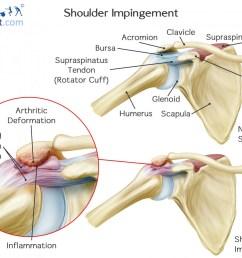 what causes shoulder impingement  [ 1400 x 1033 Pixel ]