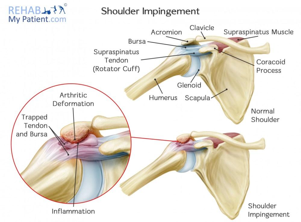 medium resolution of what causes shoulder impingement