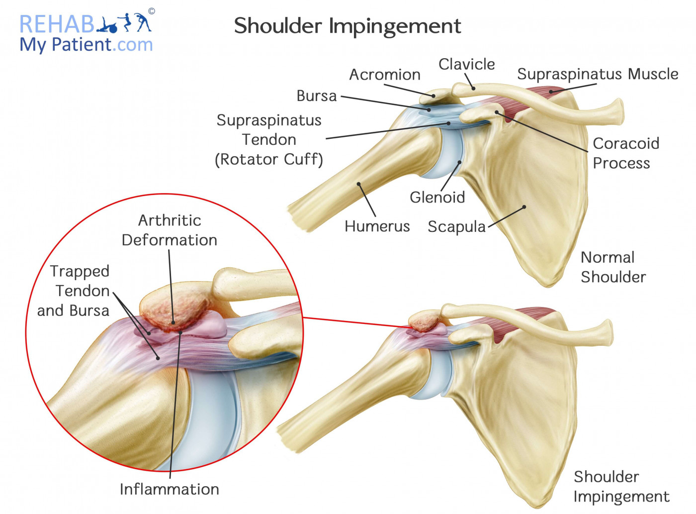 hight resolution of what causes shoulder impingement