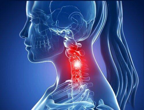 Que faire en cas de douleur aux cervicales