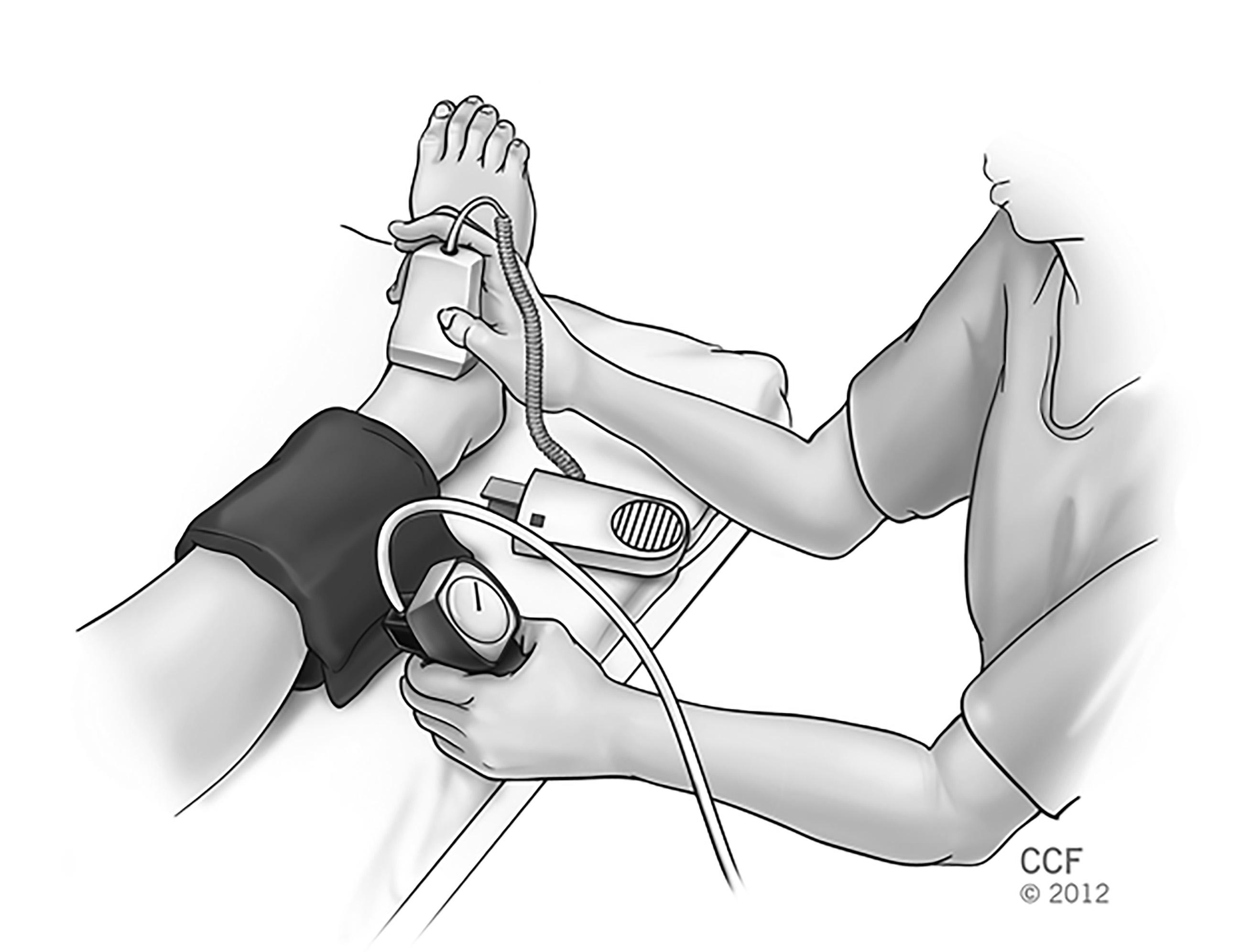 Limb Ischemia And Gangrene