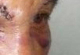Photo of Anciano de 80 años es atacado con un martillo por hombre al que le dio bofetada hace 30 años
