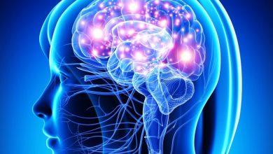 Photo of Una gravedad por COVID-19 puede causar complicaciones cerebrales, según un estudio