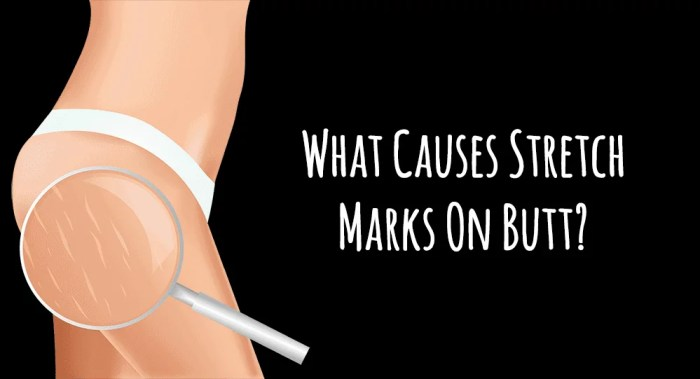 What Causes Stretch Marks On Butt?