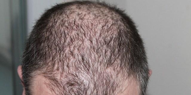 perte de cheveux que faire, perte de cheveux cause