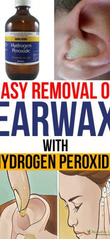 Easy Removal Of Earwax With Hydrogen Peroxide