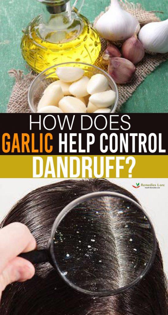 How does garlic help control dandruff-``