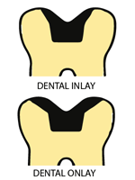 IMPORTANT facts about Dental Inlays and Dental Onlays procedure and cost  Remedy Land