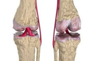 difference between osteoarthritis and rheumatoid arthritis