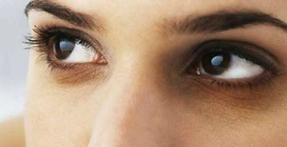 dark circles under eyes causes
