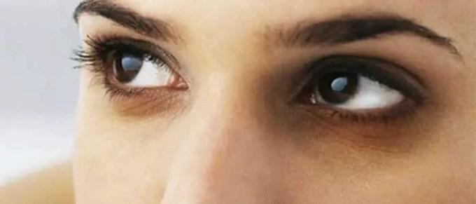 dark circles under eyes causes