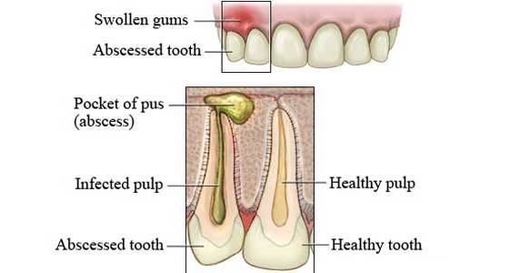 home remedies for an abscessed tooth