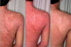 how to get rid of eczema scars