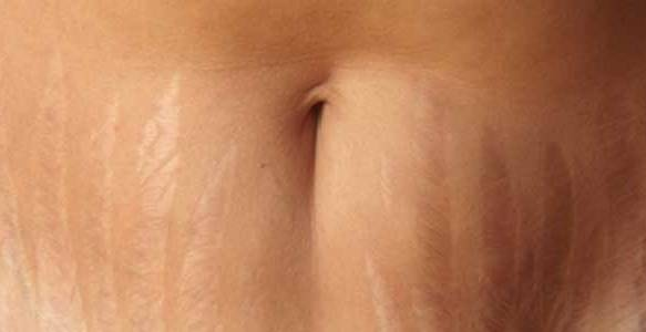how can i get rid of stretch marks