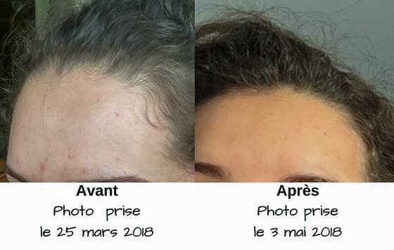 acne-avant-apres