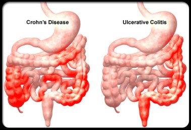 crohns-disease-s5-illustration-of-crohns-disease-and-ulcerative-colitis