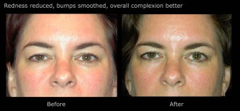 Redness reduced, bumps smoothed, overall complexion better