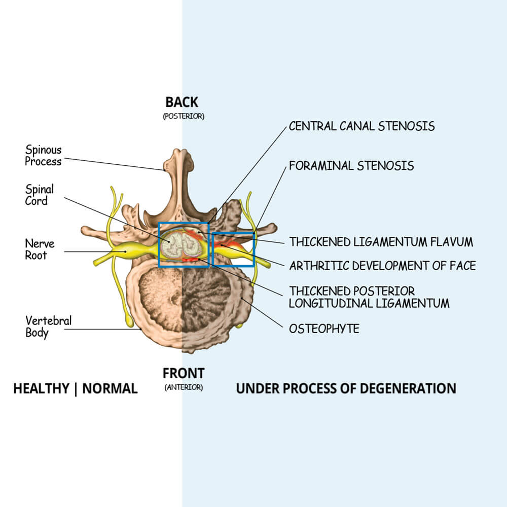 medium resolution of spinal stenosis illustration showing how central stenosis and foramnial stenosis occur