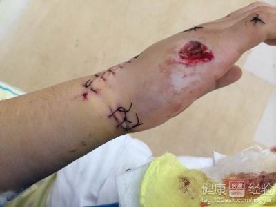 手指肌腱斷裂功能恢復無名指肌腱斷裂_第二人生