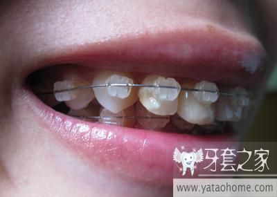 拔牙已經五六天拔牙后牙洞長著白_第二人生