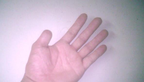 大拇指指甲蓋黑線 我左手大拇指指甲蓋上正中間一條豎的黑線?_第二人生