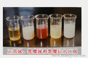 乳糜尿可見于 乳糜尿常見于什么疾病_第二人生