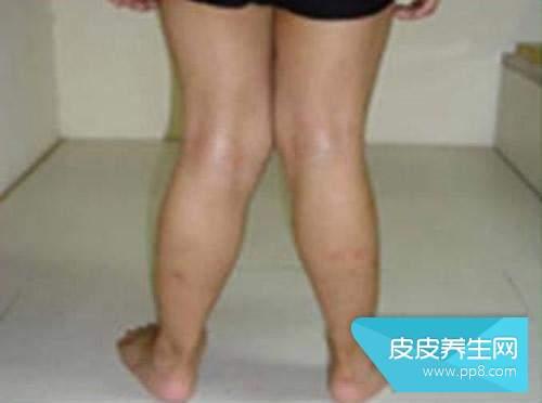 x腿型是什么樣的 X型腿的判斷標準是什么 X型腿_第二人生