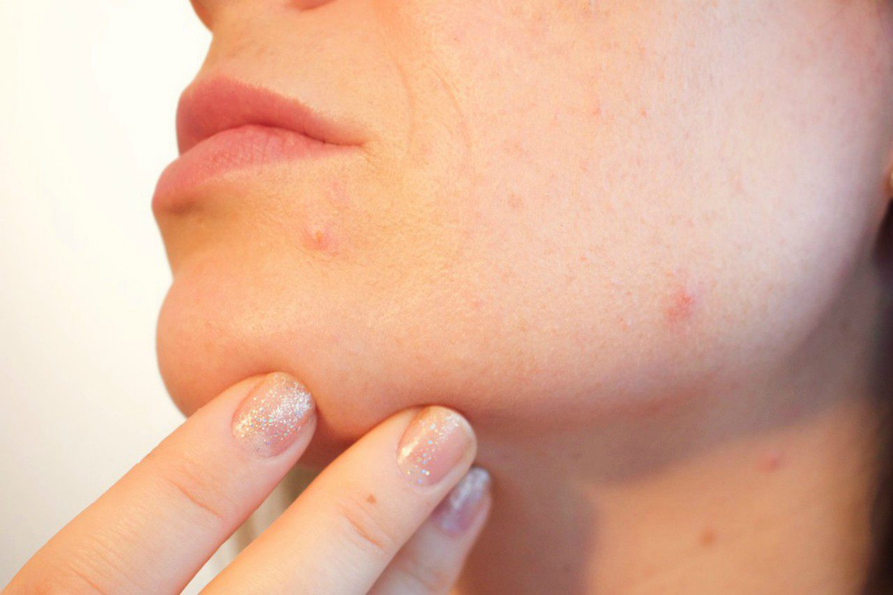 An image of a woman with acne touching her chin