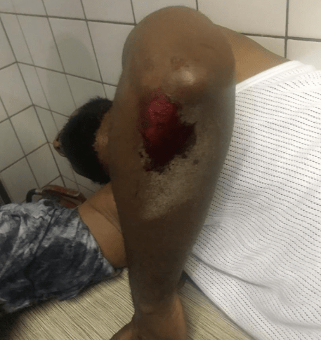 Deji Adeyanju Reportedly Hospitalized After Being Injured By Counter Protesters, As Policemen Look On