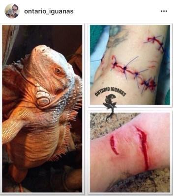 Bite from Ontario Iguanas' pet iguana
