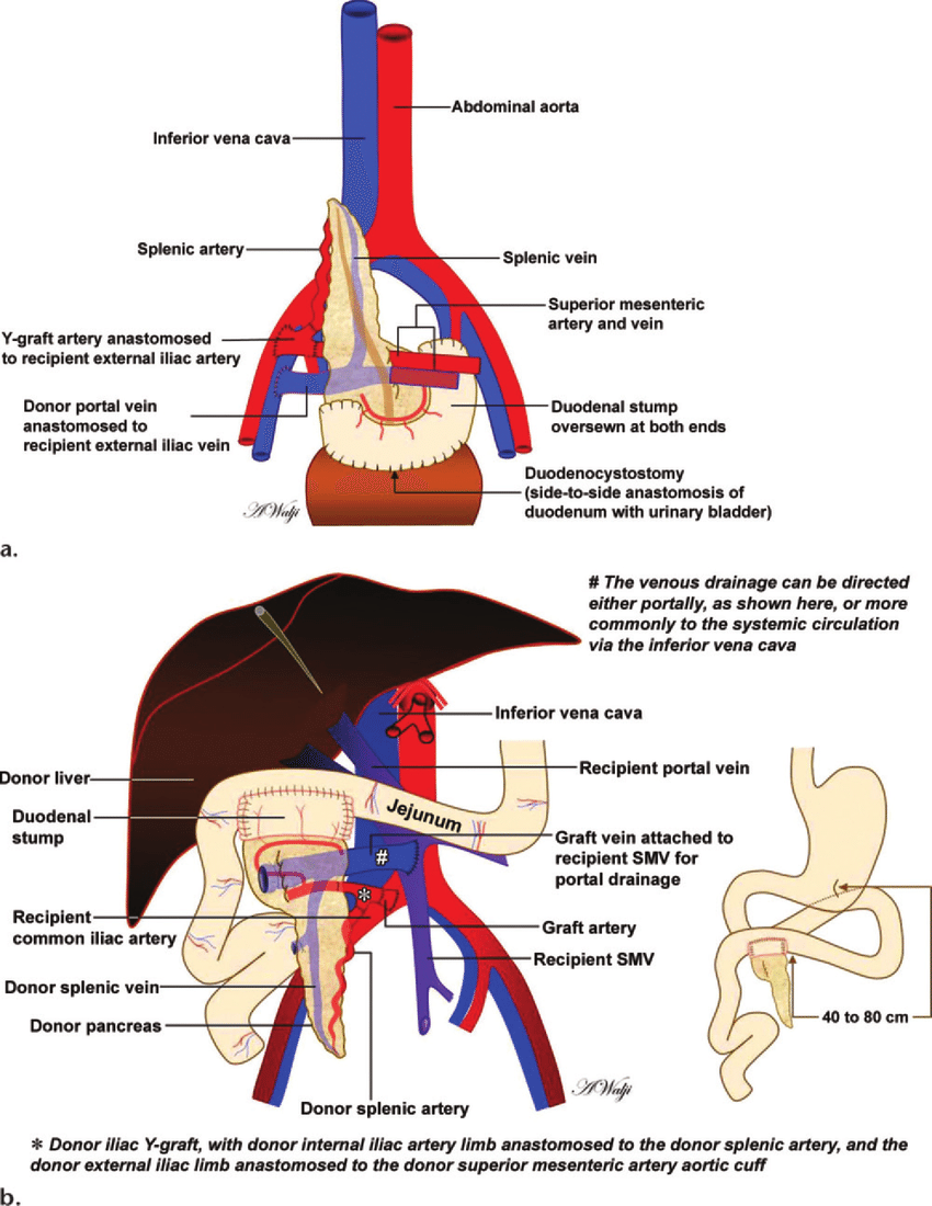 hight resolution of  a schematic of a pancreas transplant shows the vascular and visceral anastomoses used in transplantation with a systemic bladder drainage technique now