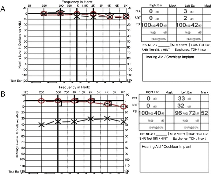 Example audiograms. (A) Audiogram illustrating normal