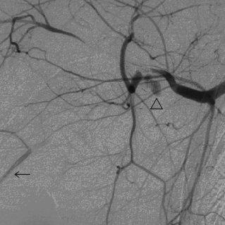 (PDF) Axillary Artery and Brachial Plexus Injuries due to
