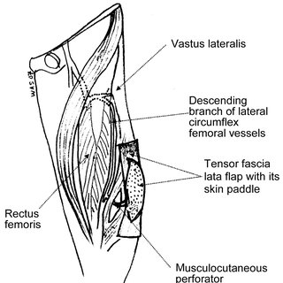 Schematic diagram of the tensor fascia lata flap