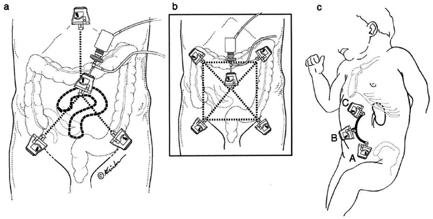 Trocar placement for laparoscopic abdominal procedures: A