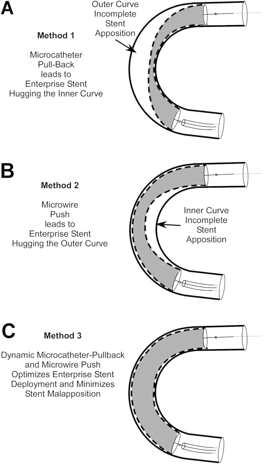 Illustration of resulting incomplete stent apposition (ISA