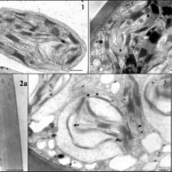 Elodea Leaf Cell Diagram 4 Pin Voltage Regulator Wiring Tem Micrograph Of A Upper From Control Canadensis Download Scientific